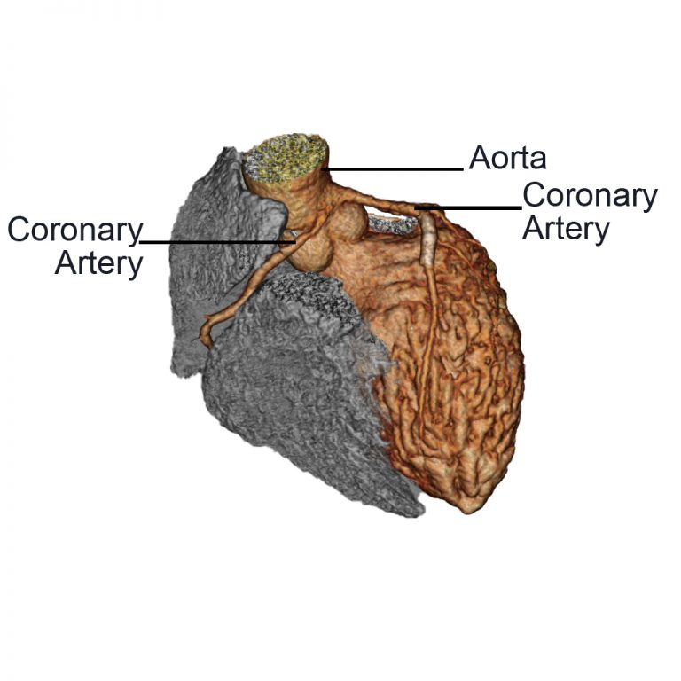 Anomalous Aortic Origin of the Coronary Artery (AAOCA)