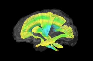 This image shows all of the white matter fiber tracts investigated in this study. (courtesy of Meghan Swanson, PhD)
