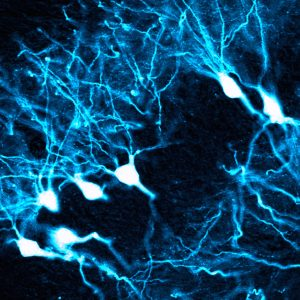 This image shows AAV therapy affecting pyramidal neurons in the hippocampus. (Blake Albright, Asokan Lab)