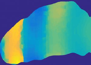 This is a velocity map of the brain. The transitions between blue and yellow indicate a shock front.